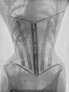 X-ray of woman wearing corset
